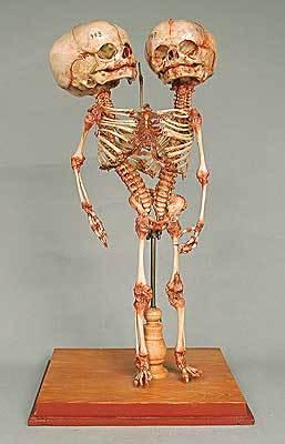 Skelett einer Doppelbildung aus der Meckelschen Sammlung